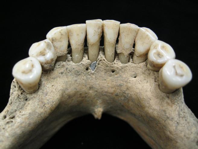 imagen de la incrustación azul en la dentadura fósil