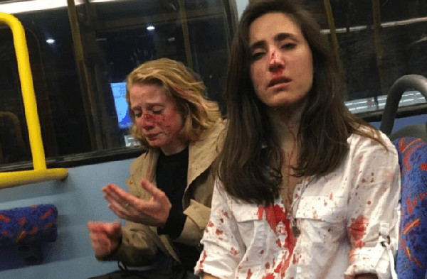 imagen de la pareja agredida en Londres